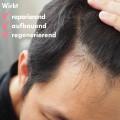 MOEA Super Kopfhaut Seren für Nachwachsen
